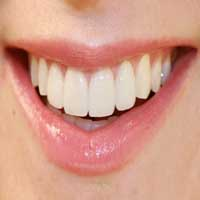 Ceramic Veneers Shah Dental Clinic