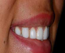 cosmetic dentistry direct and indirect veneers Porcelain or indirect veneers porcelain veneers are custom-made in a laboratory and applied to the teeth they resist stains better than composite veneers and better simulate the shine of natural teeth.