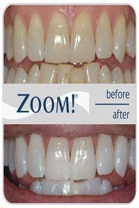Zoom Teeth Whitening Shah Dental Clinic