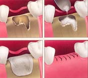 Bone Grafting Shah Dental Clinic