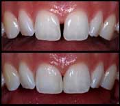 Diastema Closure Shah Dental Clinic
