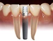 Implants Shah Dental Clinic