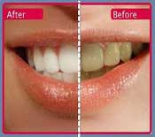 Teeth Whitening Shah Dental Clinic