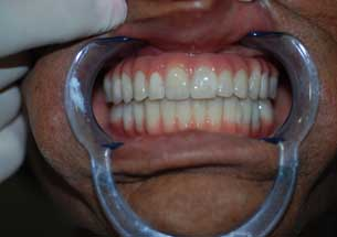 Hybrid Dentures Shah Dental Clinic