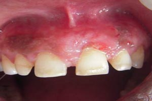 Subepithelial Connective Tissue Graft After Shah Dental Clinic