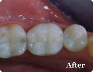 Dental Inlay Restorations - After