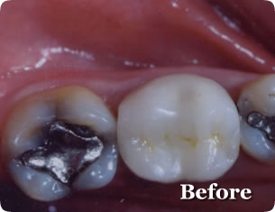 Dental Inlay Restorations - Before
